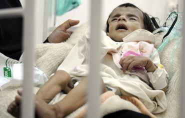 الصحة العالمية ويونيسف: اليمن يعيش أسوأ حالة لتفشي الكوليرا في العالم