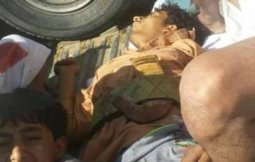 المداني يفتتح يومه الأول بقتل المحتجين سلمياً في مأرب اليمنية